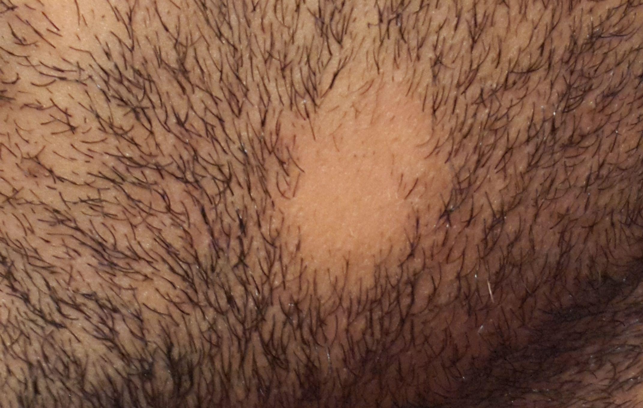 bald-spot-beard-alopecia-areata-barbae-2