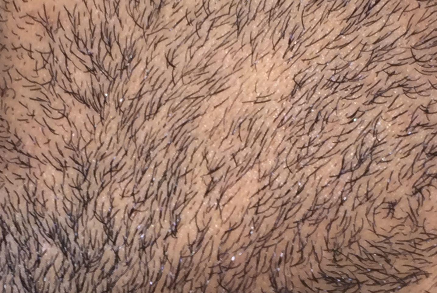 bald-spot-beard-alopecia-areata-barbae-4
